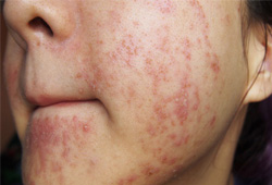 Bệnh dị ứng da