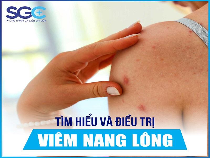 tìm-hiểu-và-điều-trị-viêm-nang-lông-Recovered-01.jpg